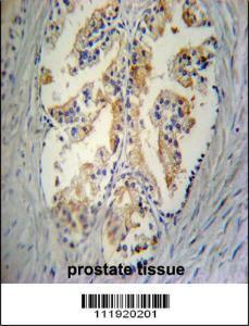 Anti-STC2 Rabbit Polyclonal Antibody