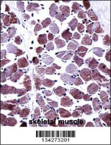 Anti-STEAP1 Rabbit Polyclonal Antibody (HRP (Horseradish Peroxidase))