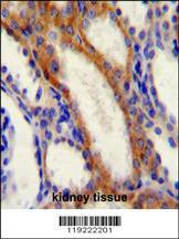 Anti-STIM1 Rabbit Polyclonal Antibody (PE (Phycoerythrin))