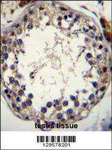 Anti-STRA8 Rabbit Polyclonal Antibody (FITC (Fluorescein Isothiocyanate))