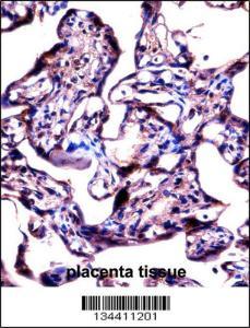 Anti-STS Rabbit Polyclonal Antibody (AP (Alkaline Phosphatase))