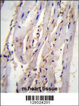 Anti-STX19 Rabbit Polyclonal Antibody (HRP (Horseradish Peroxidase))