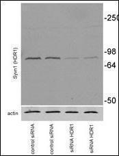 Anti-SYVN1 Rabbit Polyclonal Antibody (AP (Alkaline Phosphatase))