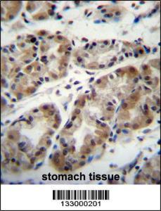 Anti-TAF8 Rabbit Polyclonal Antibody