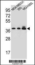 Anti-TAS2R1 Rabbit Polyclonal Antibody (AP (Alkaline Phosphatase))
