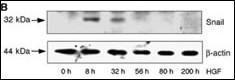 Anti-SNAI1 Rabbit Polyclonal Antibody (Biotin)