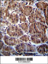 Anti-SOCS4 Rabbit Polyclonal Antibody (APC (Allophycocyanin))