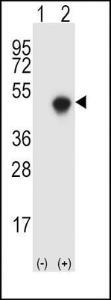 Anti-SPHK1 Rabbit Polyclonal Antibody (FITC (Fluorescein Isothiocyanate))