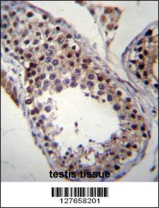 Anti-SPT19 Rabbit Polyclonal Antibody (PE (Phycoerythrin))