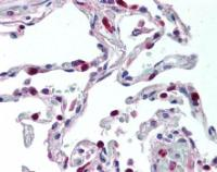 Immunohistochemical staining of paraffin embedded human lung tissue using CCR1 antibody (primary antibody at 1:200)